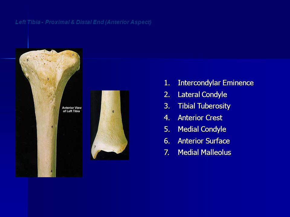 Left Tibia - Proximal & Distal End (Anterior Aspect)