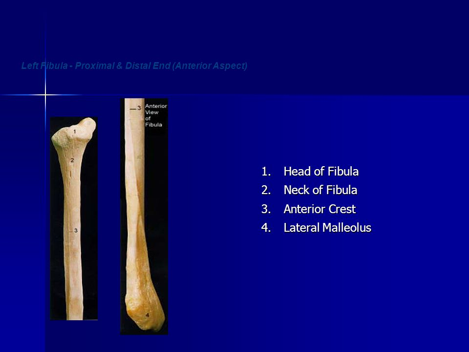 Left Fibula - Proximal & Distal End (Anterior Aspect)
