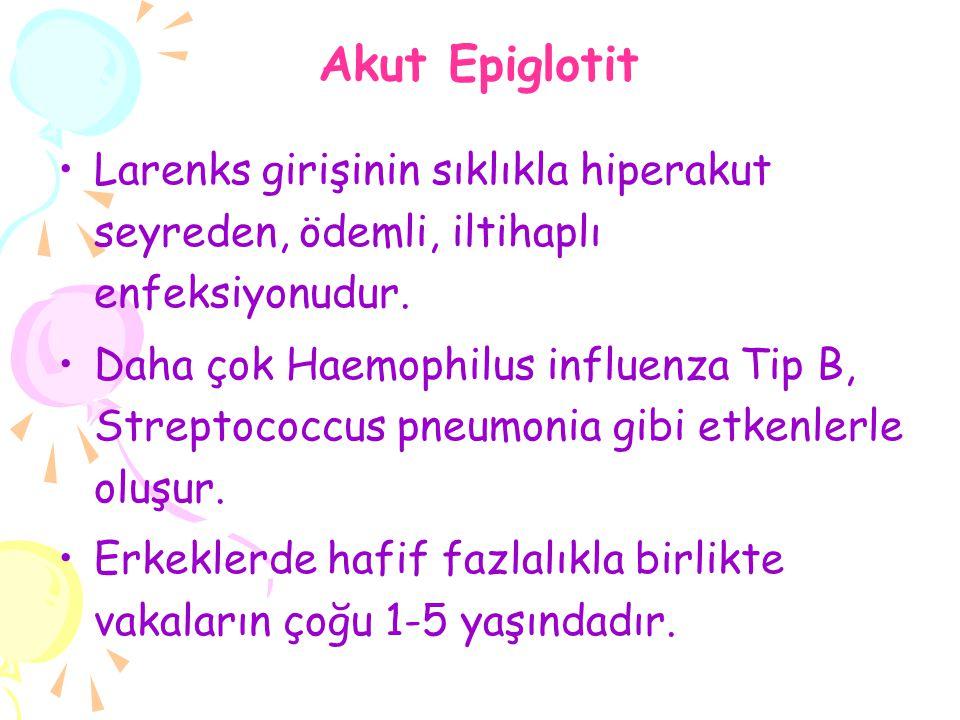 Akut Epiglotit Larenks girişinin sıklıkla hiperakut seyreden, ödemli, iltihaplı enfeksiyonudur.