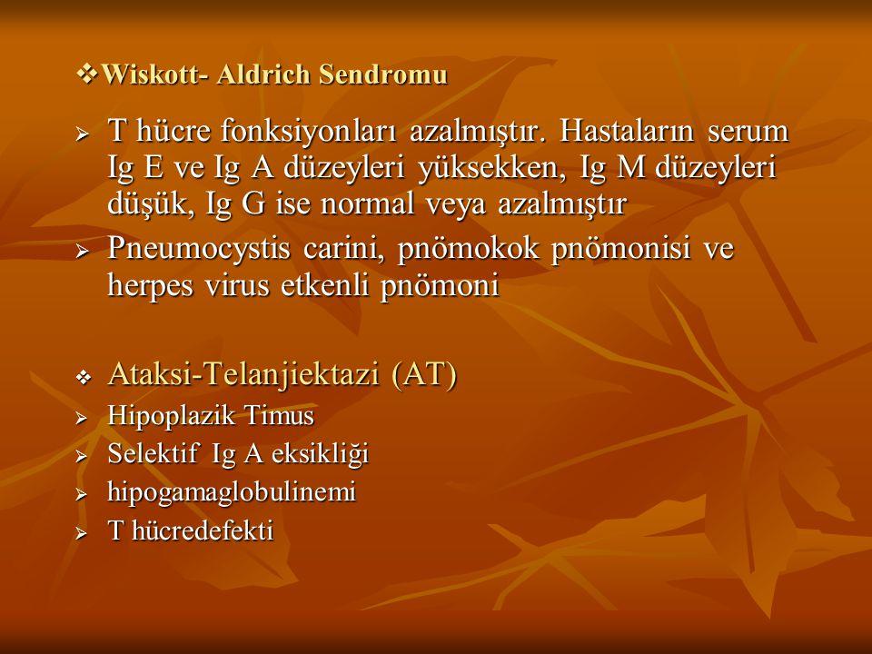 Wiskott- Aldrich Sendromu