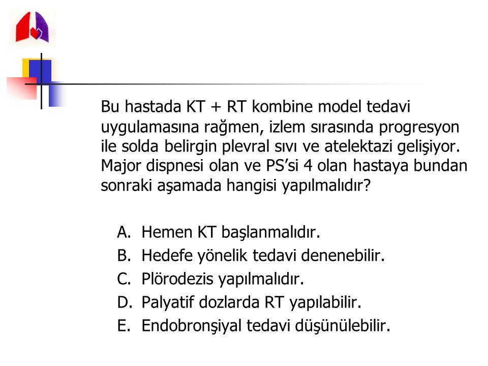 Bu hastada KT + RT kombine model tedavi uygulamasına rağmen, izlem sırasında progresyon ile solda belirgin plevral sıvı ve atelektazi gelişiyor. Major dispnesi olan ve PS'si 4 olan hastaya bundan sonraki aşamada hangisi yapılmalıdır