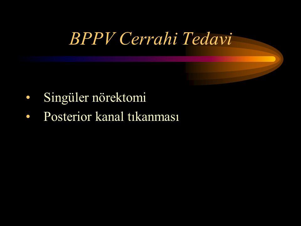 BPPV Cerrahi Tedavi Singüler nörektomi Posterior kanal tıkanması