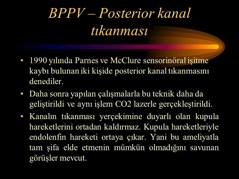 BPPV – Posterior kanal tıkanması