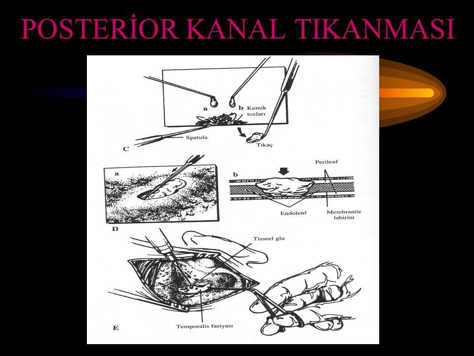 POSTERİOR KANAL TIKANMASI
