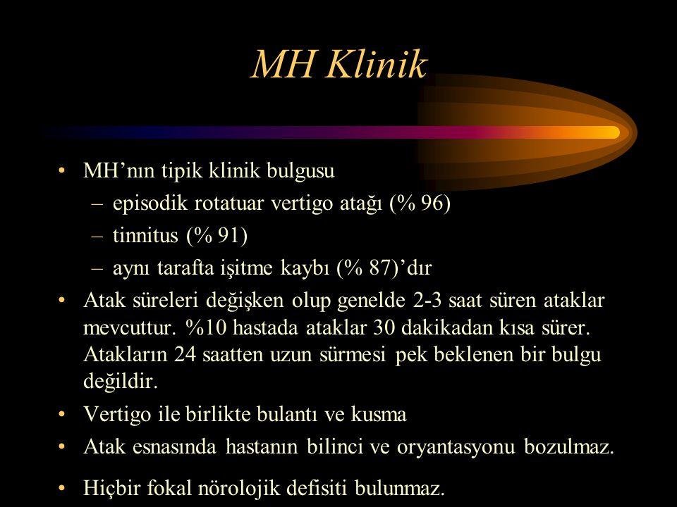 MH Klinik MH'nın tipik klinik bulgusu