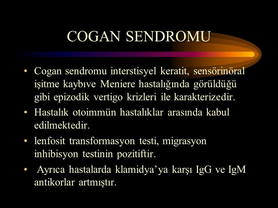 COGAN SENDROMU