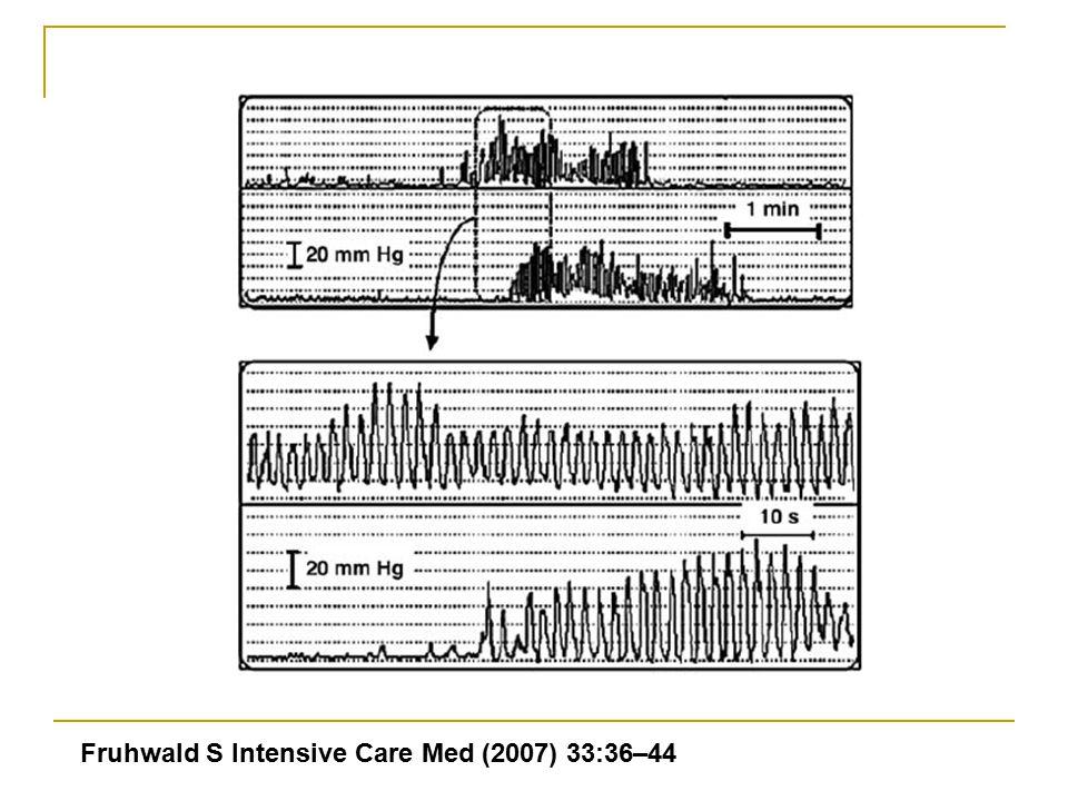 Fruhwald S Intensive Care Med (2007) 33:36–44