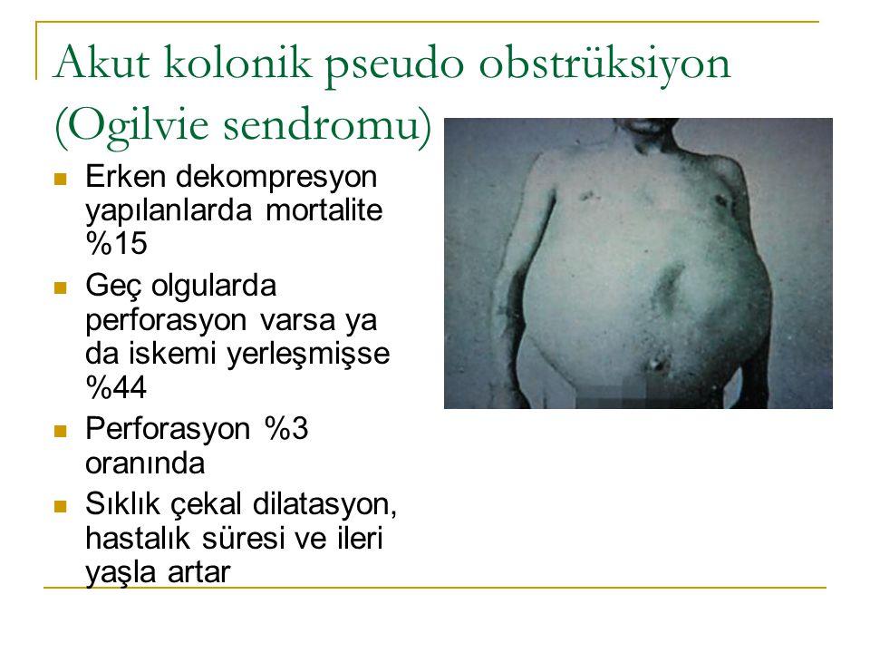 Akut kolonik pseudo obstrüksiyon (Ogilvie sendromu)