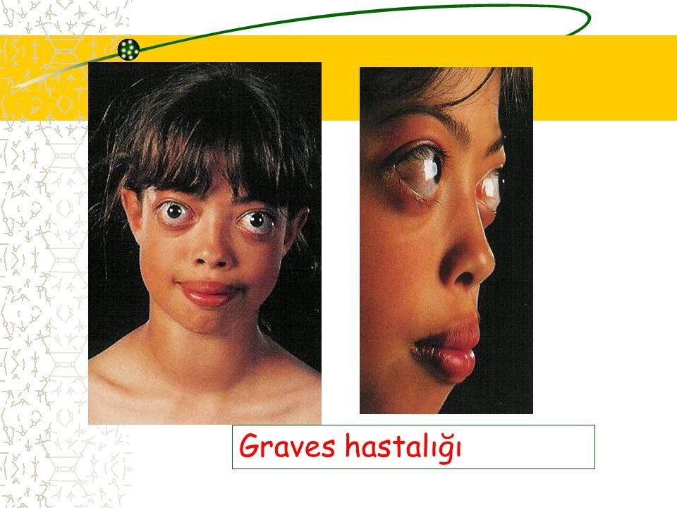 Graves hastalığı
