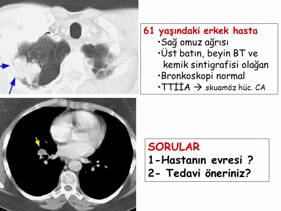 SORULAR 1-Hastanın evresi 2- Tedavi öneriniz