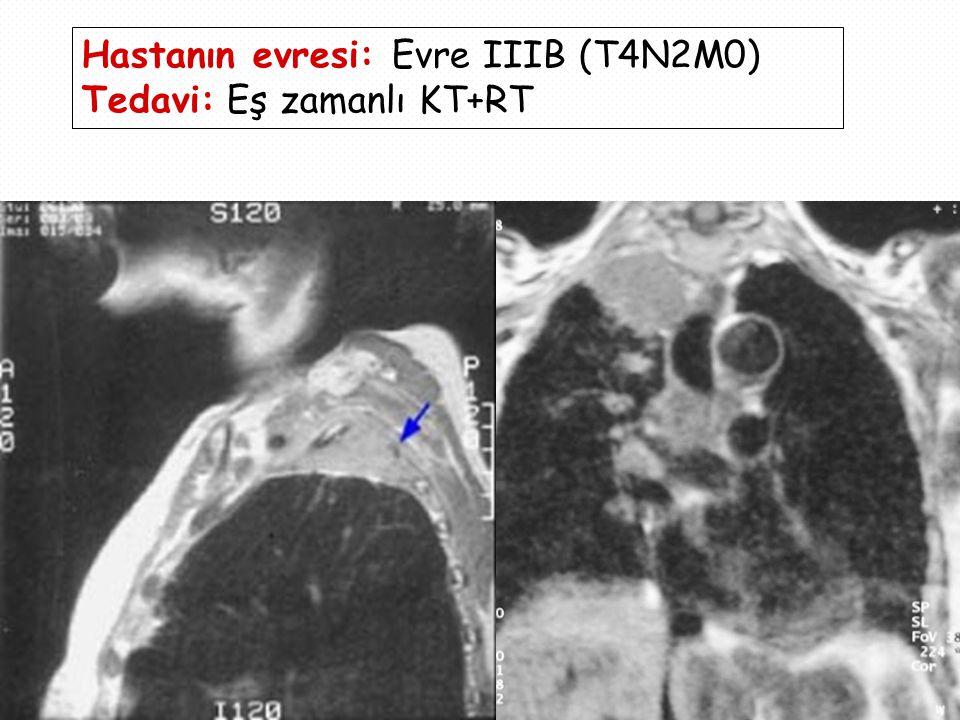 Hastanın evresi: Evre IIIB (T4N2M0)