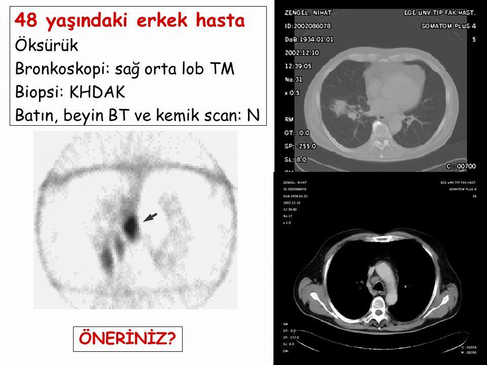 48 yaşındaki erkek hasta Öksürük Bronkoskopi: sağ orta lob TM