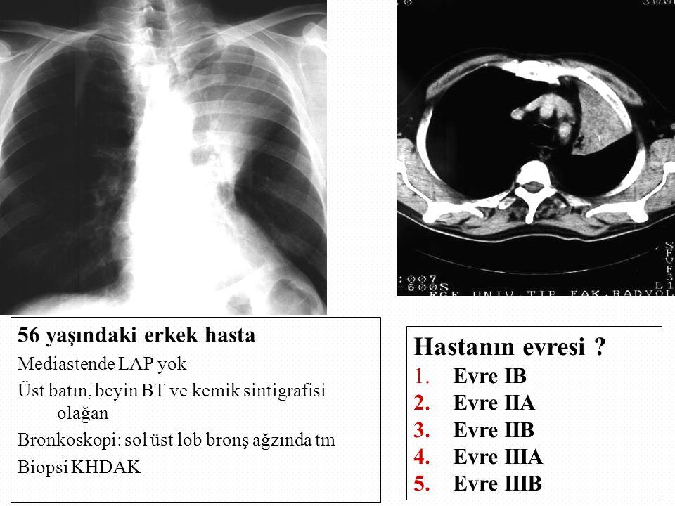 Hastanın evresi 56 yaşındaki erkek hasta Evre IB Evre IIA Evre IIB