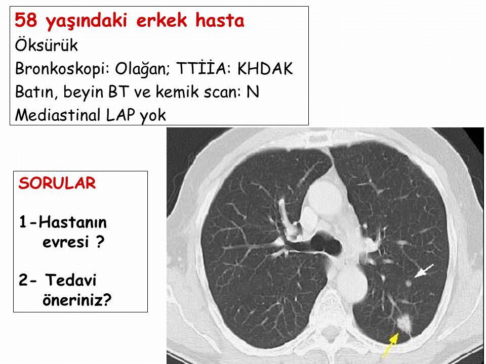 58 yaşındaki erkek hasta Öksürük Bronkoskopi: Olağan; TTİİA: KHDAK
