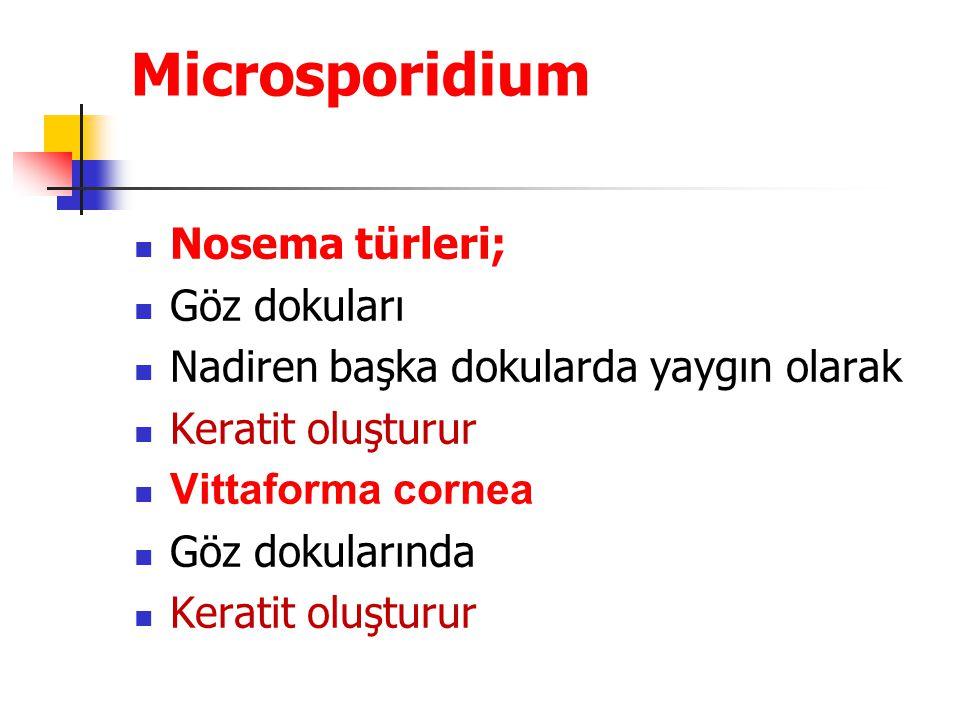 Microsporidium Nosema türleri; Göz dokuları