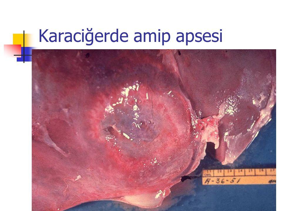 Karaciğerde amip apsesi