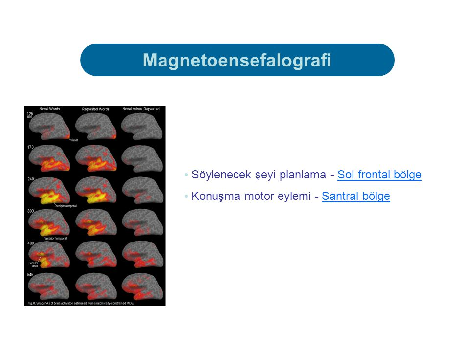 Magnetoensefalografi