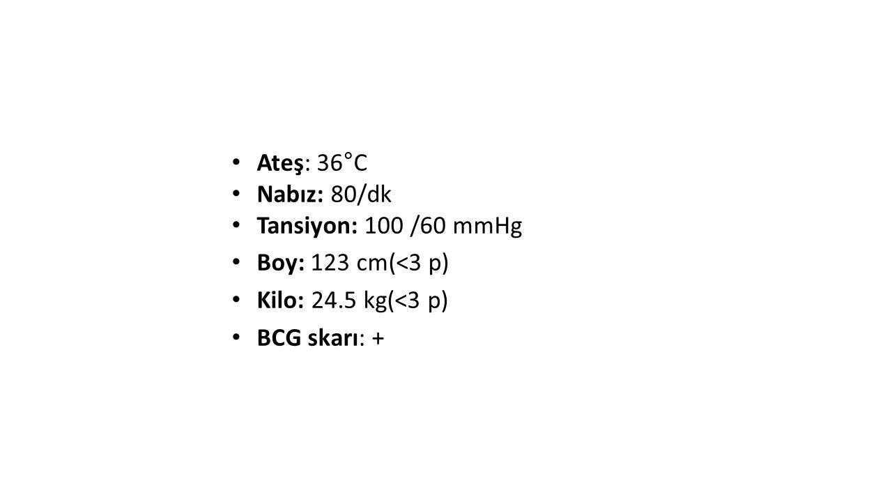 Ateş: 36°C Nabız: 80/dk Tansiyon: 100 /60 mmHg Boy: 123 cm(<3 p) Kilo: 24.5 kg(<3 p) BCG skarı: +