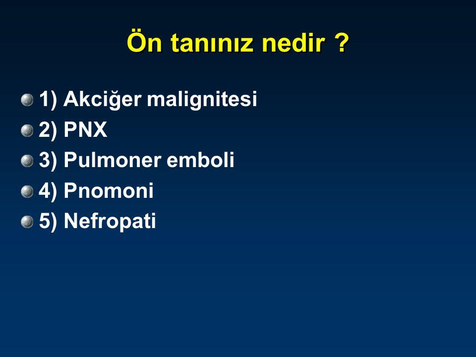 Ön tanınız nedir 1) Akciğer malignitesi 2) PNX 3) Pulmoner emboli