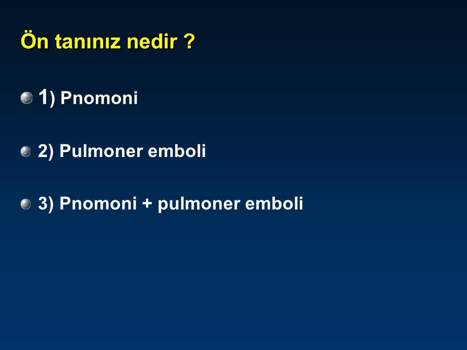 Ön tanınız nedir 1) Pnomoni 2) Pulmoner emboli