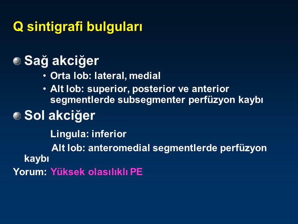 Q sintigrafi bulguları