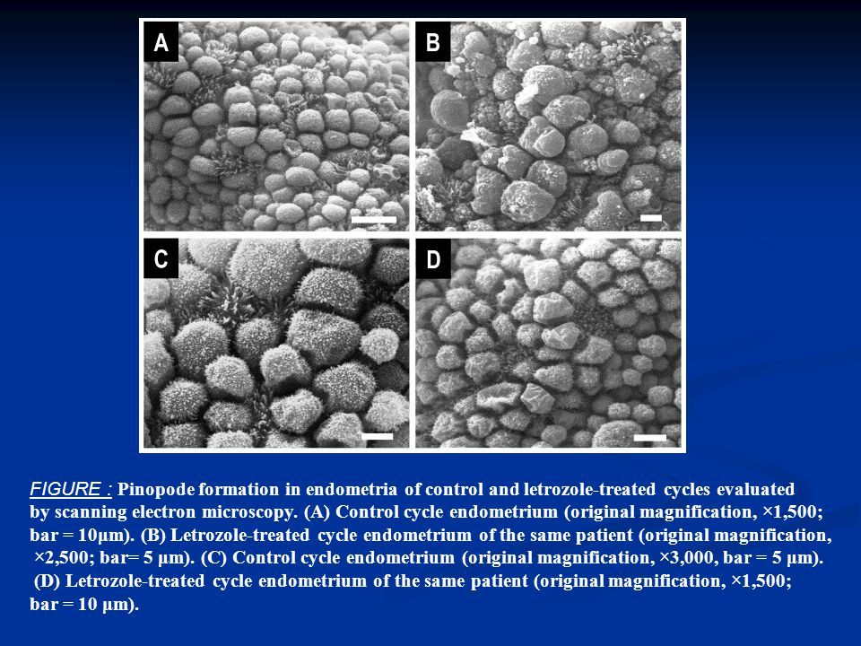 FIGURE : Pinopode formation in endometria of control and letrozole-treated cycles evaluated