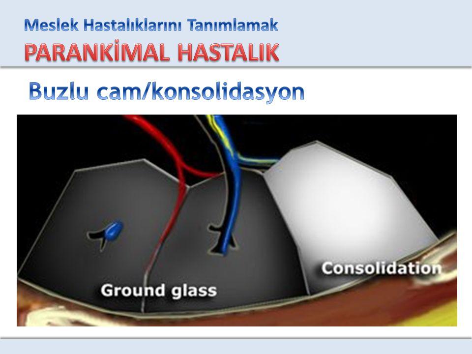 Buzlu cam/konsolidasyon