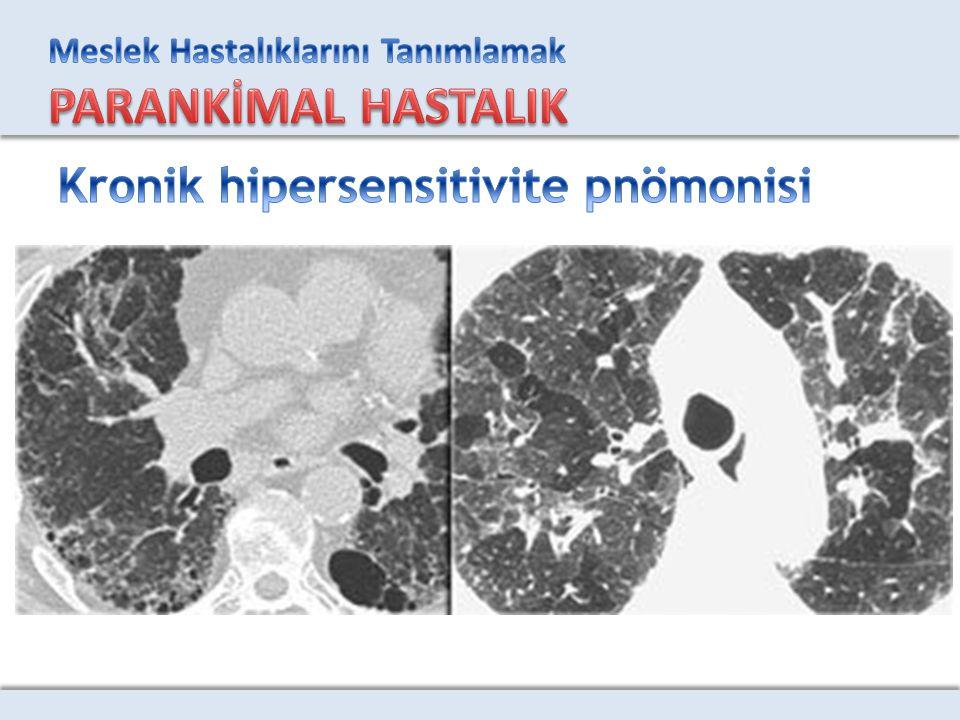 Kronik hipersensitivite pnömonisi