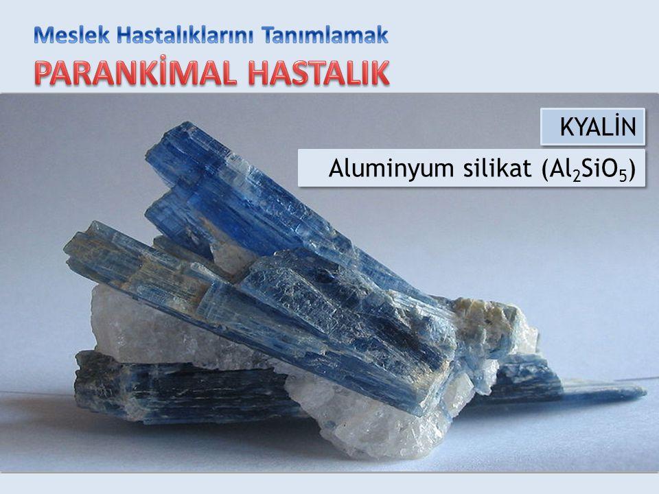 KYALİN Aluminyum silikat (Al2SiO5)