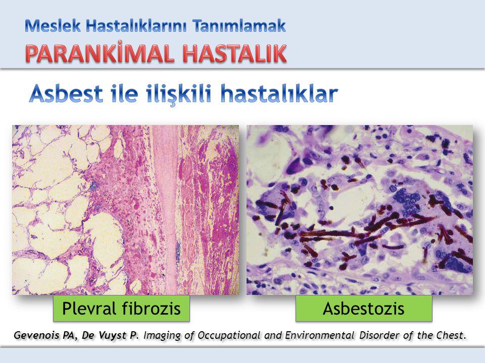 Asbest ile ilişkili hastalıklar