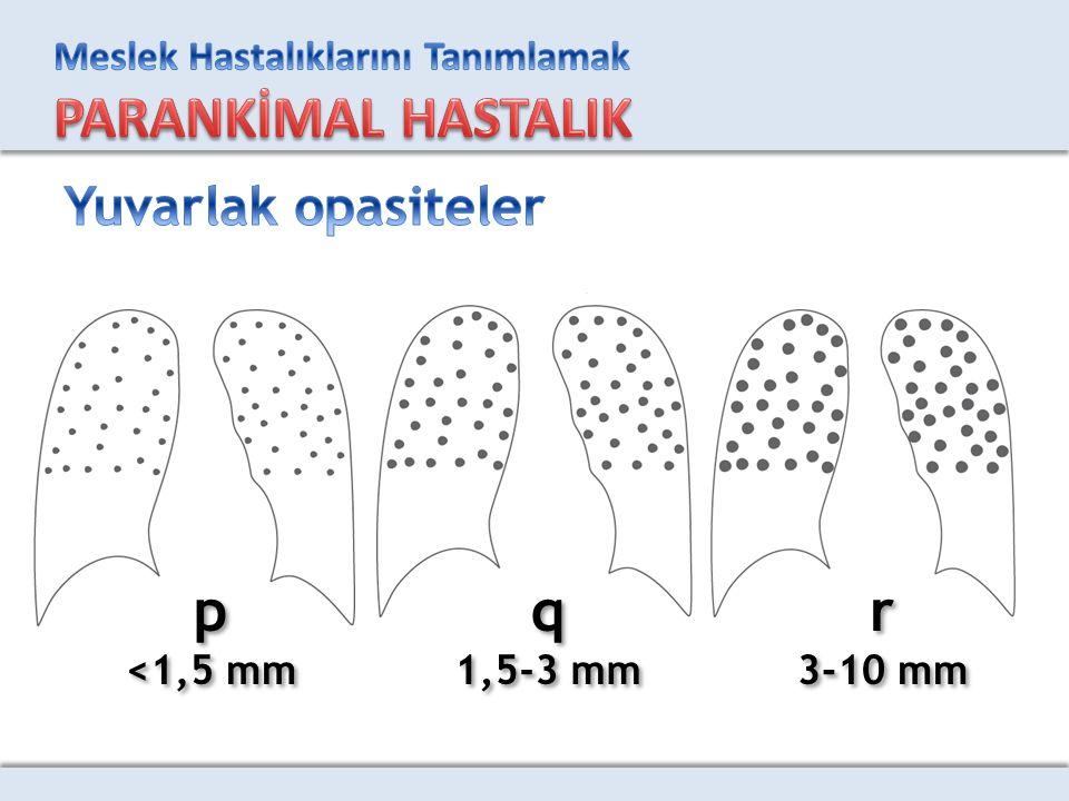 Yuvarlak opasiteler p <1,5 mm q 1,5-3 mm r 3-10 mm
