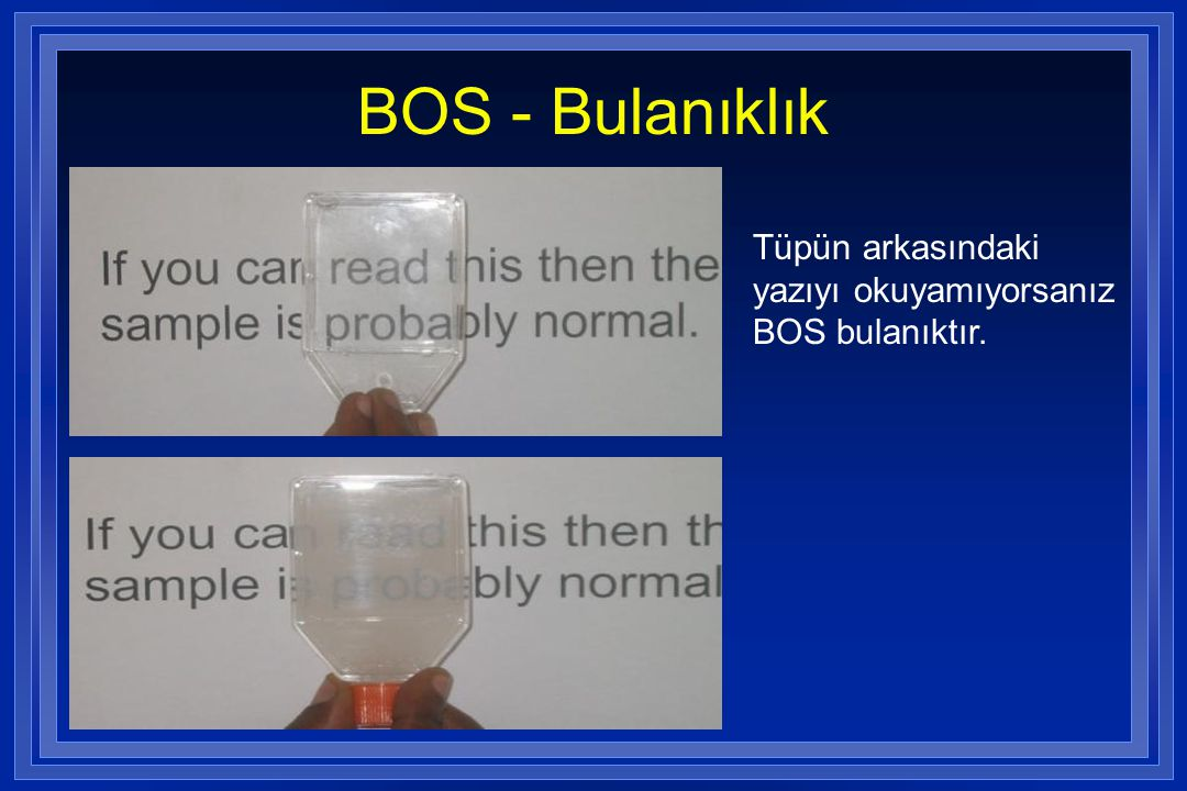 BOS - Bulanıklık Tüpün arkasındaki yazıyı okuyamıyorsanız BOS bulanıktır.