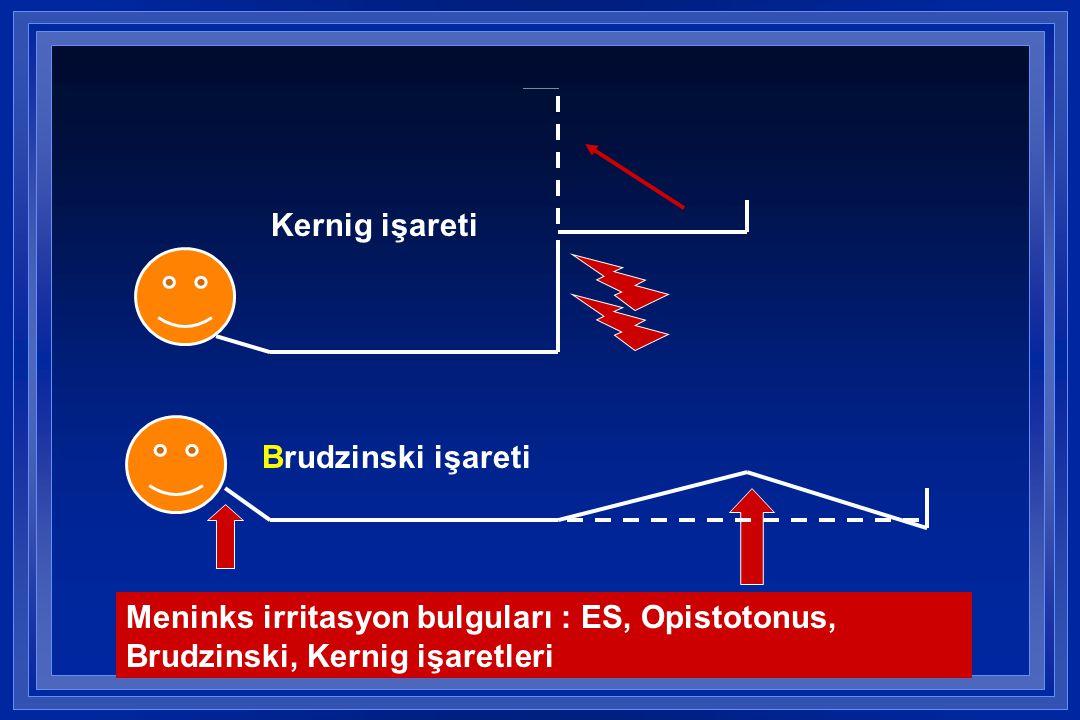Kernig işareti Brudzinski işareti.