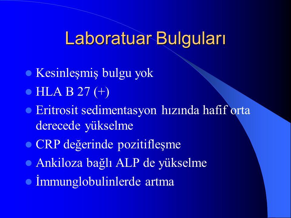Laboratuar Bulguları Kesinleşmiş bulgu yok HLA B 27 (+)