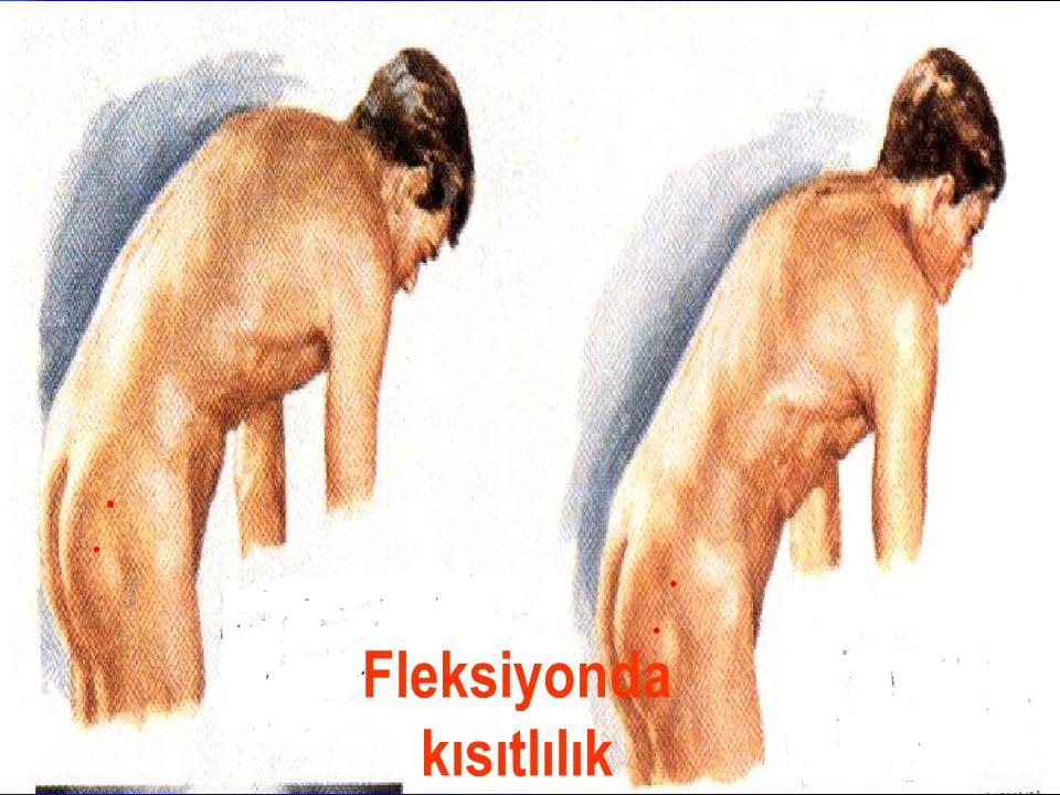 Fleksiyonda kısıtlılık