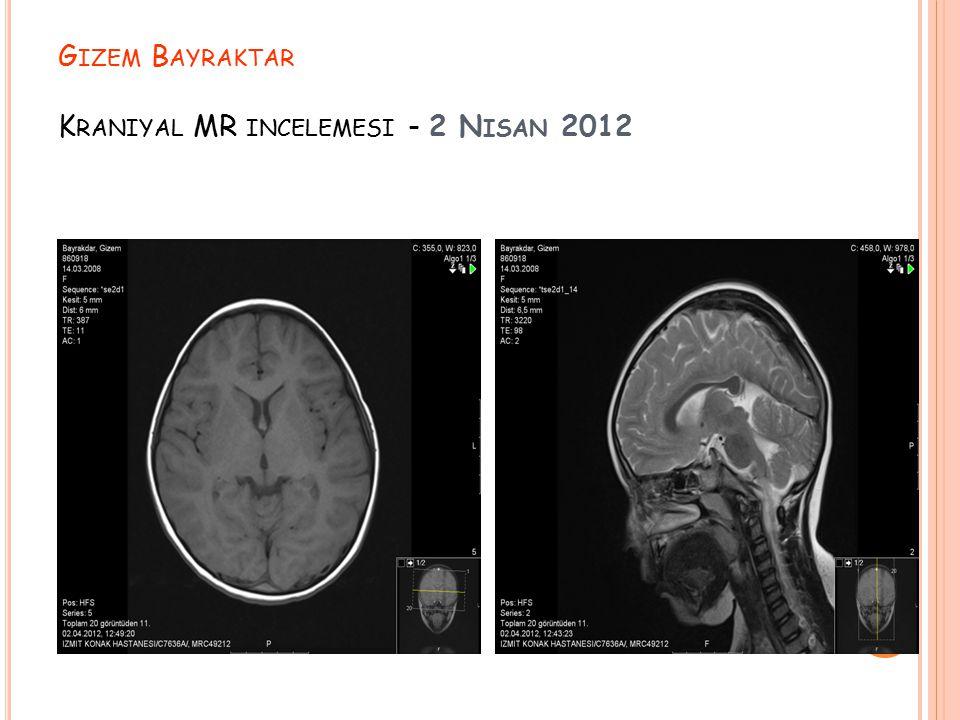 Gizem Bayraktar Kraniyal MR incelemesi - 2 Nisan 2012