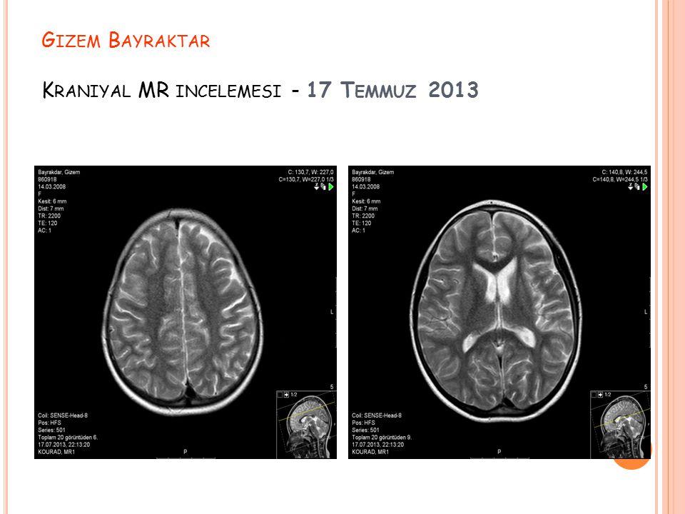 Gizem Bayraktar Kraniyal MR incelemesi - 17 Temmuz 2013