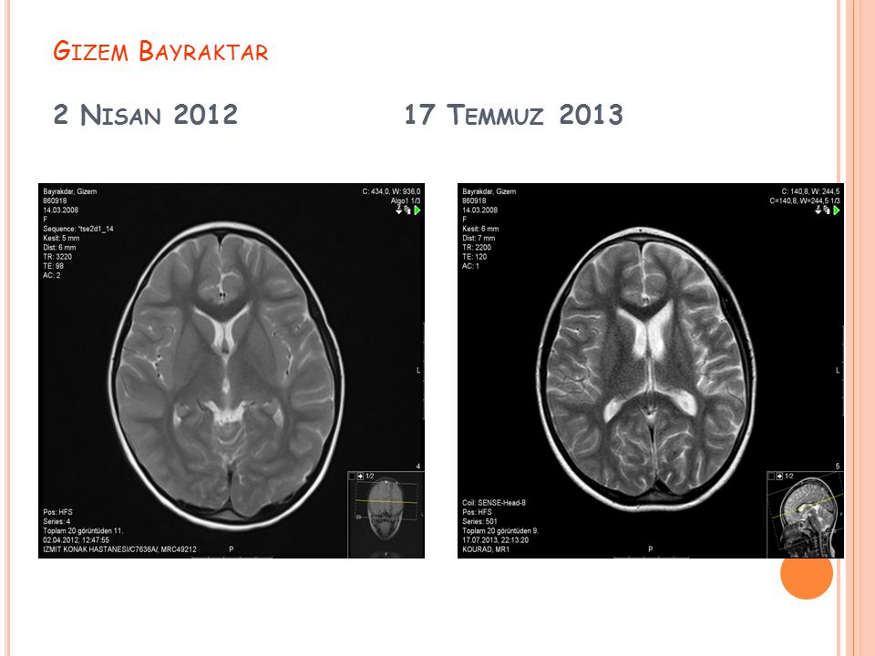 Gizem Bayraktar 2 Nisan 2012 17 Temmuz 2013