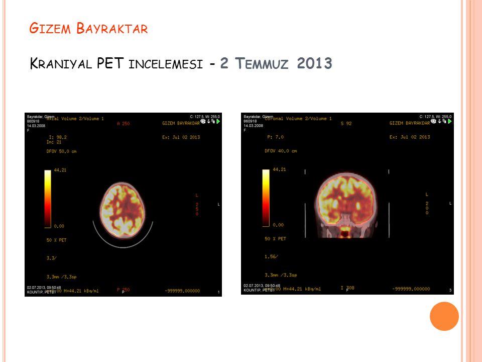 Gizem Bayraktar Kraniyal PET incelemesi - 2 Temmuz 2013