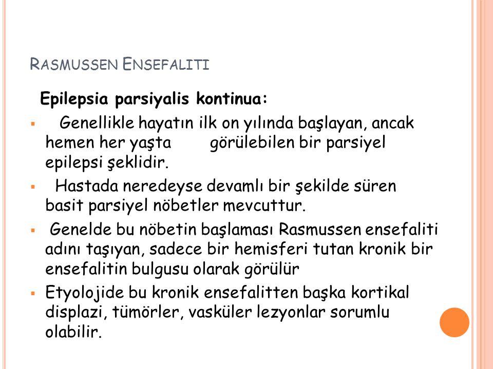 Rasmussen Ensefaliti Epilepsia parsiyalis kontinua: