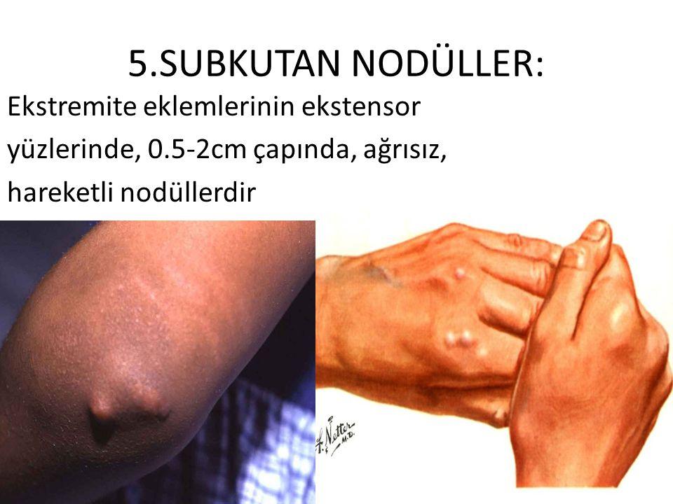 5.SUBKUTAN NODÜLLER: Ekstremite eklemlerinin ekstensor yüzlerinde, 0.5-2cm çapında, ağrısız, hareketli nodüllerdir
