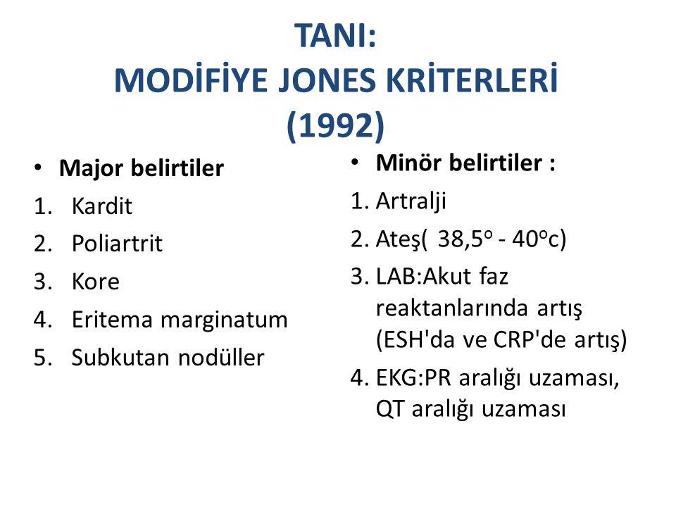 TANI: MODİFİYE JONES KRİTERLERİ (1992)