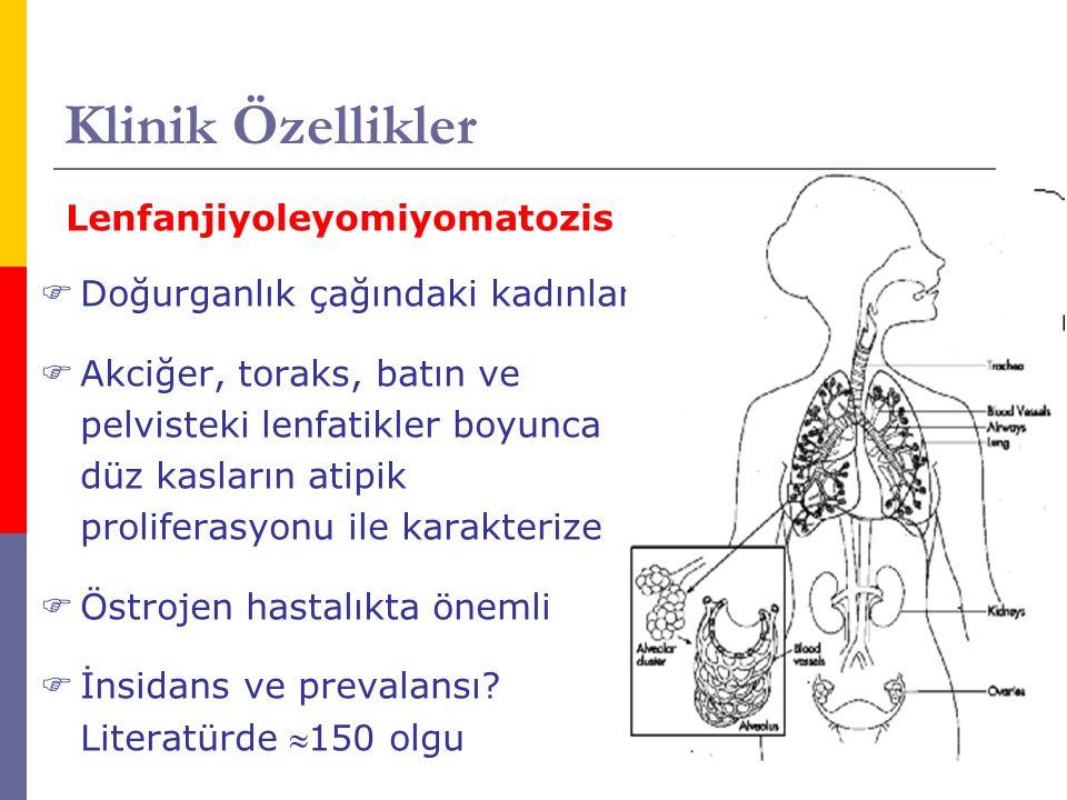 Klinik Özellikler Lenfanjiyoleyomiyomatozis