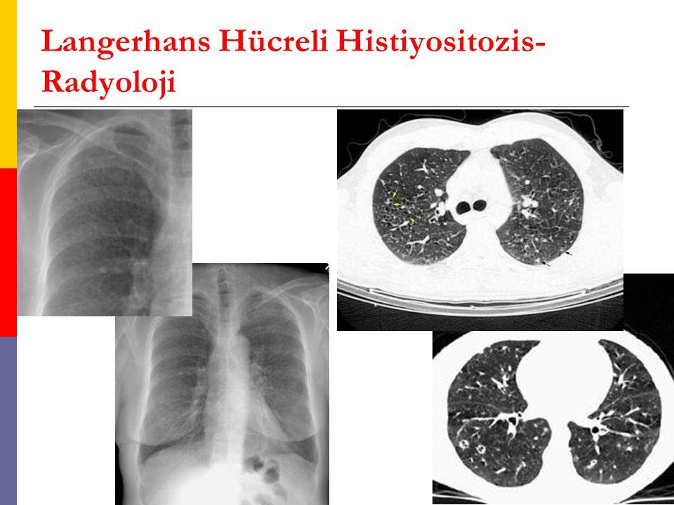 Langerhans Hücreli Histiyositozis-Radyoloji