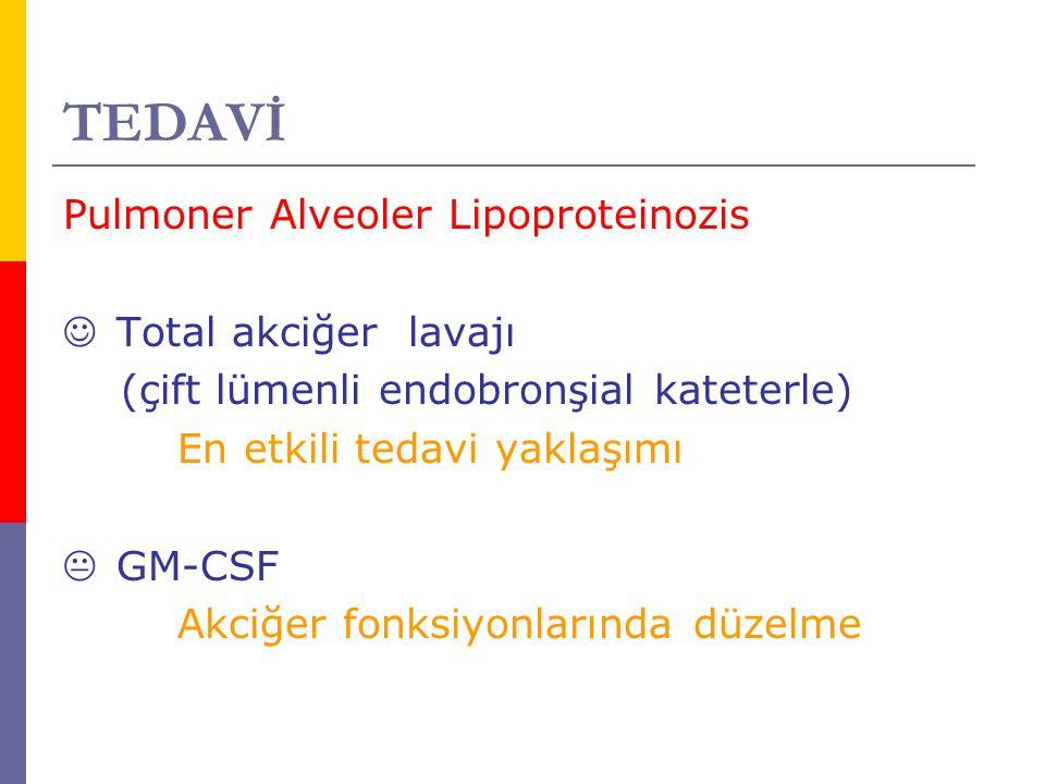 TEDAVİ Pulmoner Alveoler Lipoproteinozis Total akciğer lavajı
