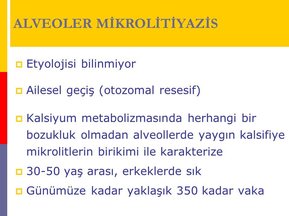 ALVEOLER MİKROLİTİYAZİS