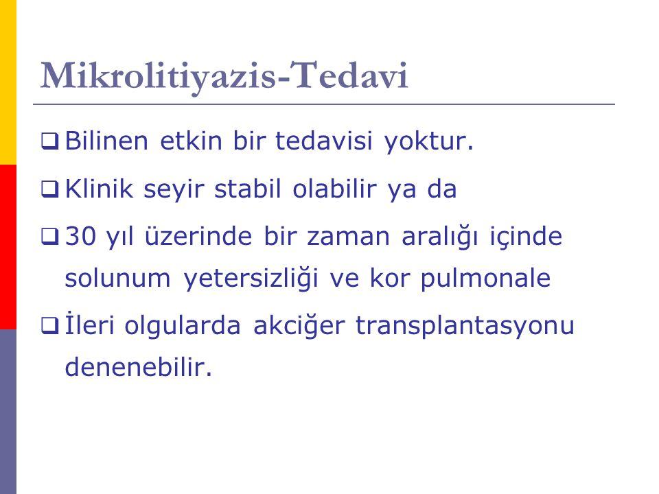 Mikrolitiyazis-Tedavi