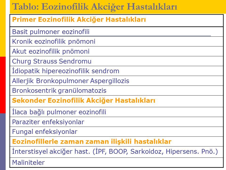 Tablo: Eozinofilik Akciğer Hastalıkları
