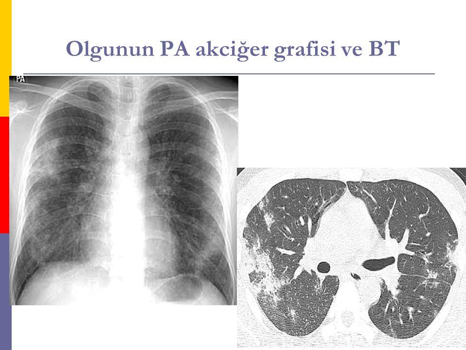 Olgunun PA akciğer grafisi ve BT