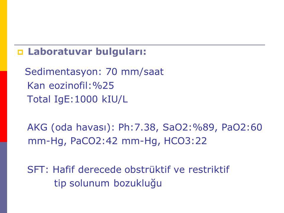 Sedimentasyon: 70 mm/saat